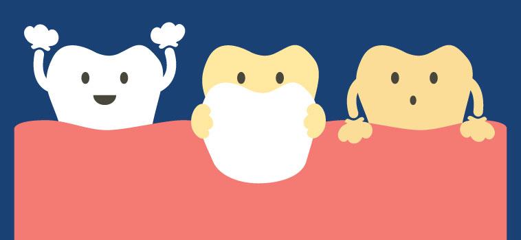 Faccette dentali estetiche: tutto quello che volevi sapere!
