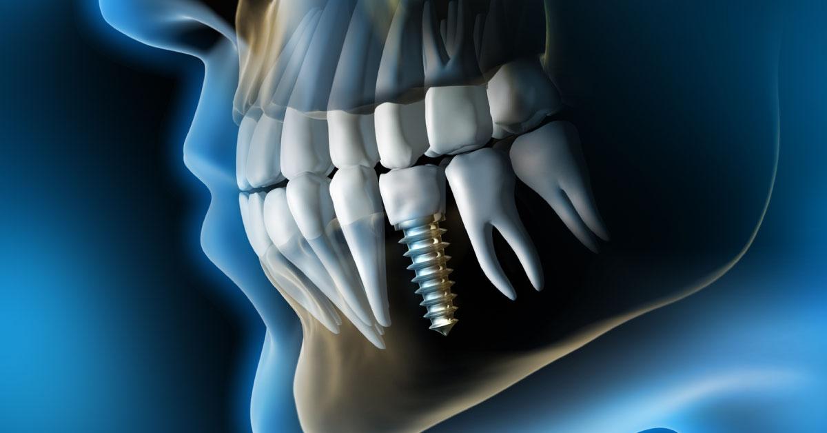 L'impianto dentale: le 5 domande più frequenti