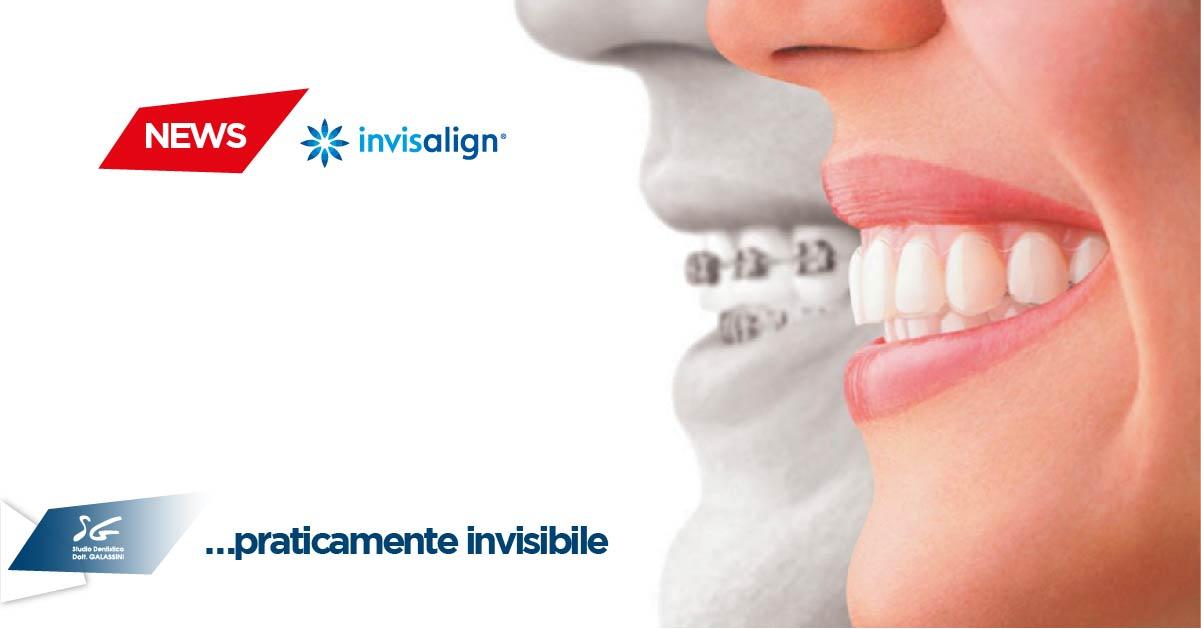 Invisalign: trasforma il tuo sorriso con l'ortodonzia invisibile