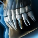 L'impianto-dentale